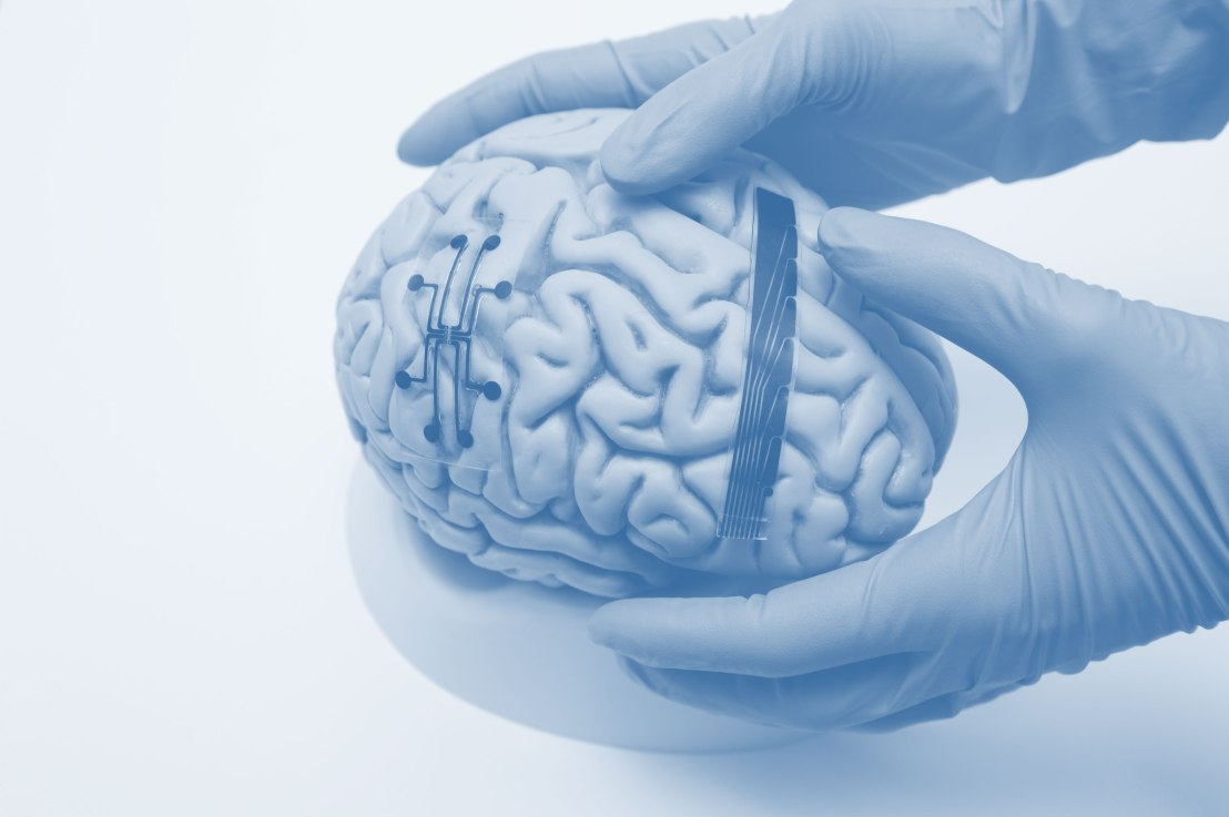 Wise start up biotech brain